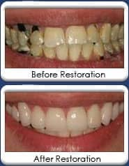 All-ceramic crowns, before & after restoration