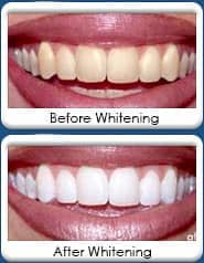 Dental Whitening at Kelly Jorn Cook, DDS and Orthodontics - Chandler, AZ