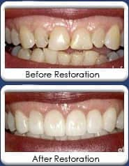 Full mouth reconstruction, restorations with dental crowns, bridgework, dental veneers