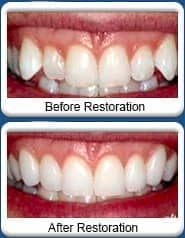 Chandler Dentist - smile makeover - before & after