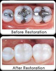 tooth colored, white dental fillings